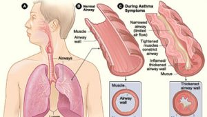asthma attack illustration
