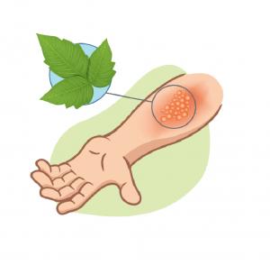 poison ivy home remedies illustration