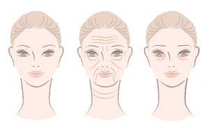 home remedies for wrinkles illustration