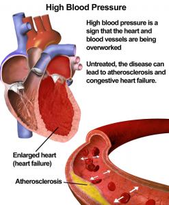home remedies for high blood pressure illustration