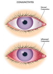 home remedies for pink eye diagram