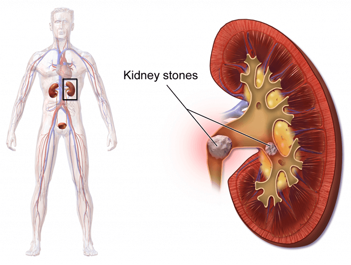 20 Home Remedies for Kidney Stones that Work Fast