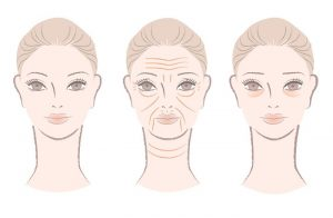 home remedies for wrinkles illustration