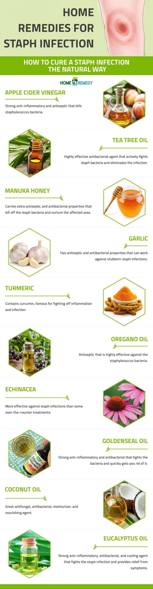 home remedies for staph infection infographic
