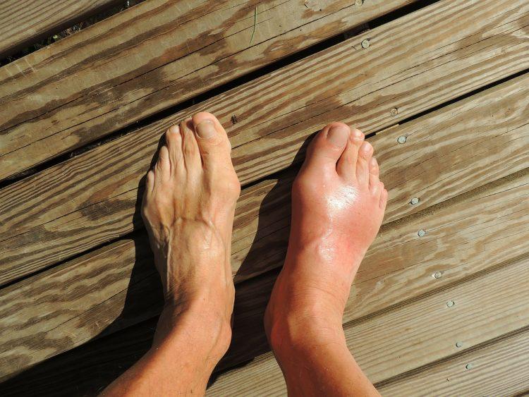 pain foot