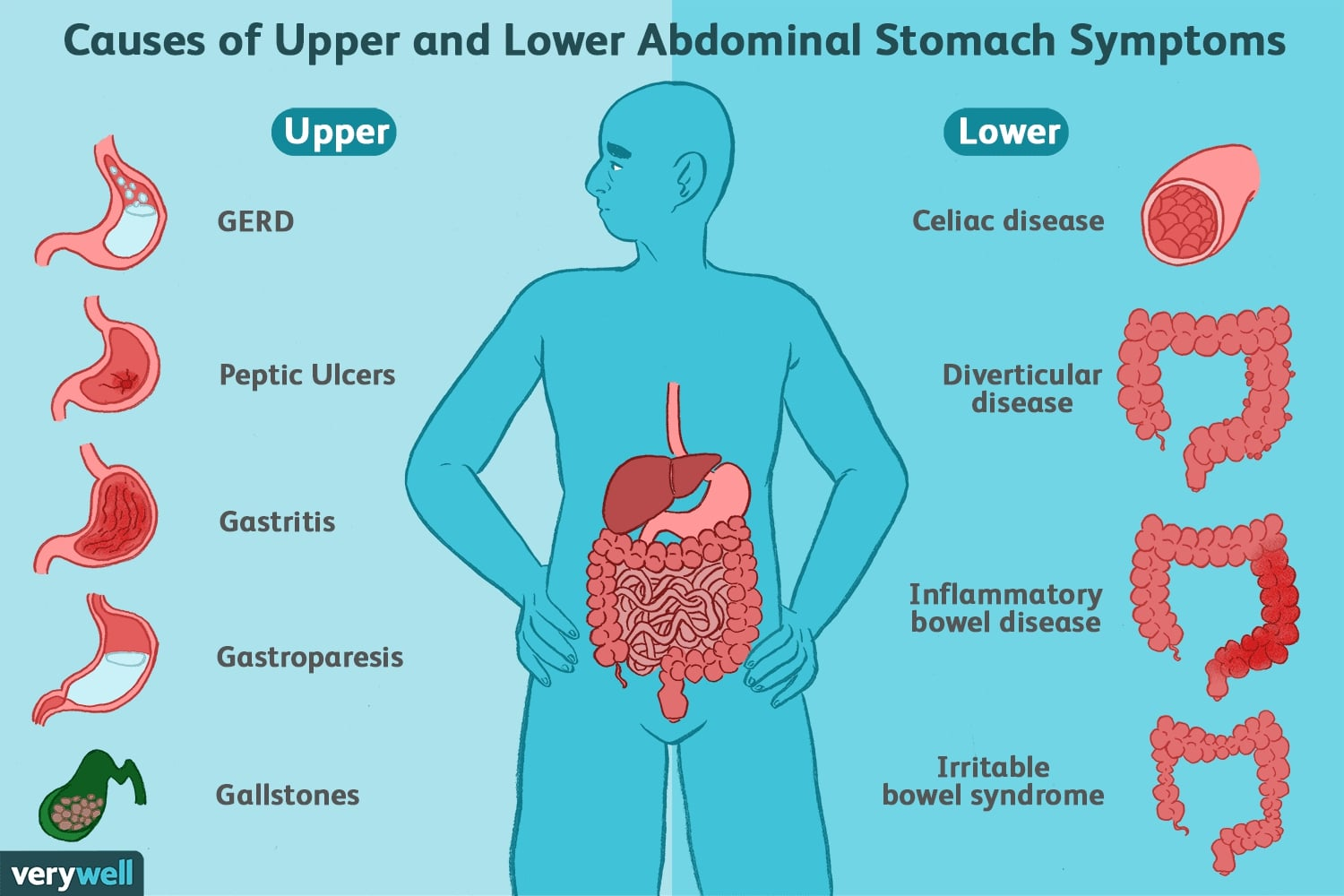 Chart of Causes of abdominal Stomach Symptoms